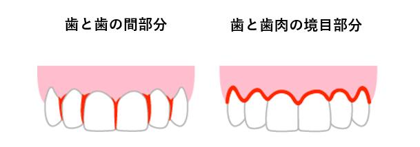 歯石取りは痛い?口臭の天敵である歯石について詳しくご紹介